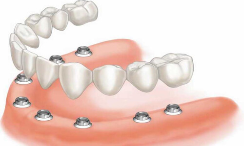 Illustration of an all-on-eight dental procedure done by the Costa Rica Dental Center in San Jose, Costa Rica.  The picture shows an all-on-eight being placed in the lower jaw.