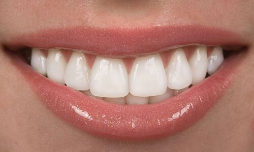 Picture of a woman with perfect teeth after having a Hollywood caps procedure done at the Costa Rica Dental Center in San Jose, Costa Rica.  The picture is a close-up of a perfect smile.