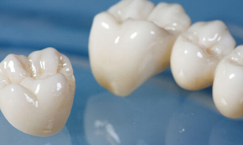 Illustration of a dental crowns procedure done by the Costa Rica Dental Center in San Jose, Costa Rica.  The picture shows four white dental crowns as examples.