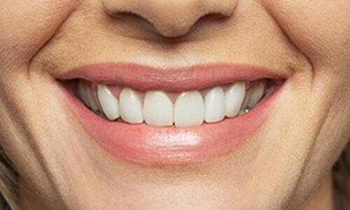 Picture of a woman with perfect teeth after having a dentures procedure done at the Costa Rica Dental Center in San Jose, Costa Rica.  The picture is a close-up of a perfect smile.
